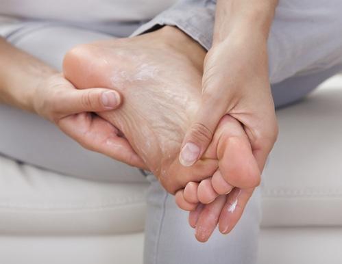 traitement de la plante des pieds secs et craquelés - efficace en 10 minutes
