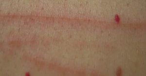 Angiomes Faut-il s'inquiéter de ces tâches rouges qui apparaissent sur votre peau